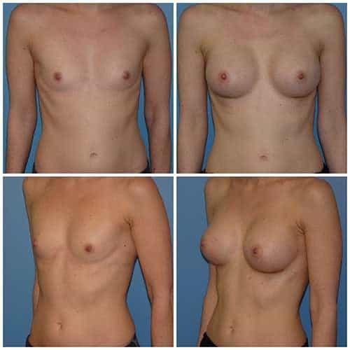dr robert zerbib chirurgie plastique chirurgien esthetique paris 16 75116 chirurgie esthetique des seins augmentation mammaire par protheses mammaires paris 16 9