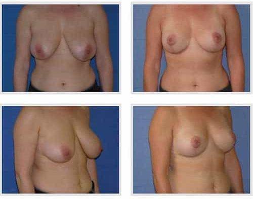 dr robert zerbib chirurgie plastique chirurgien esthetique paris 16 75116 chirurgie esthetique des seins lifting mammaire lifting des seins ptose mammaire affaissement des seins seins qui tombent 10