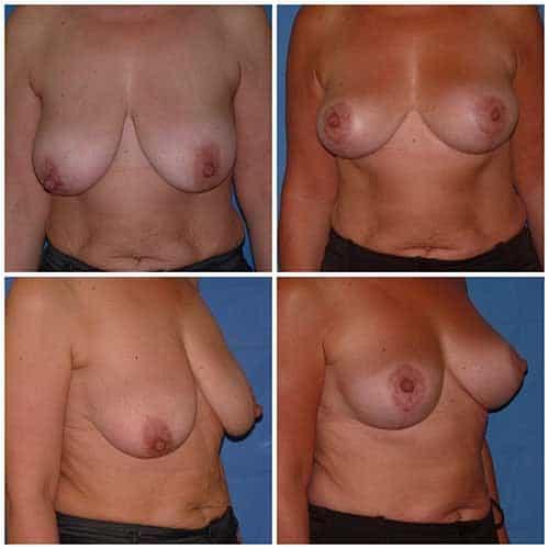 dr robert zerbib chirurgie plastique chirurgien esthetique paris 16 75116 chirurgie esthetique des seins lifting mammaire lifting des seins ptose mammaire affaissement des seins seins qui tombent 6