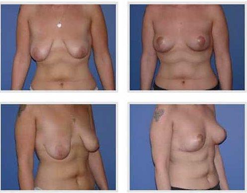 dr robert zerbib chirurgie plastique chirurgien esthetique paris 16 75116 chirurgie esthetique des seins lifting mammaire lifting des seins ptose mammaire affaissement des seins seins qui tombent 9