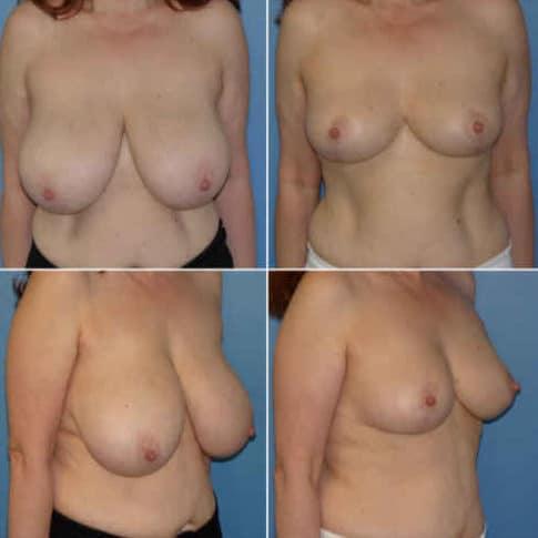 Dr-Robert-Zerbib-Chirurgie-plastique-Chirurgien-esthetique-Paris-16-75116-Seine-et-Marne-chirurgie-esthetique-des-seins-reduction-mammaire-pour-hypertrophie-mammaire-plastie-mammaire-de-reduction-10
