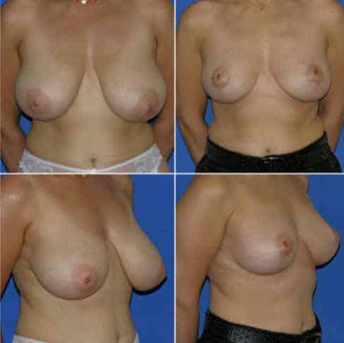 Dr-Robert-Zerbib-Chirurgie-plastique-Chirurgien-esthetique-Paris-16-75116-Seine-et-Marne-chirurgie-esthetique-des-seins-reduction-mammaire-pour-hypertrophie-mammaire-plastie-mammaire-de-reduction-14