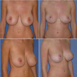 docteur-robert-zerbib-chirurgie-plastique-chirurgien-esthetique-paris-16-75116-chirurgie-esthetique-des-seins-reduction-mammaire-pour-hypertrophie-mammaire-plastie-mammaire-de-reduction-17