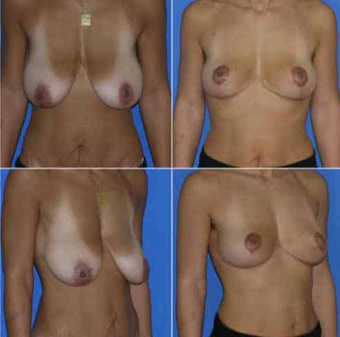 dr zerbib chirurgie plastique chirurgien esthetique paris 16 75116 seine et marne lifting mammaire seins qui tombent 11