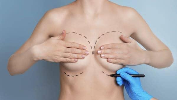 chirurgie esthetique des seins paris lifting des seins ptose mammaire lifting mammaire