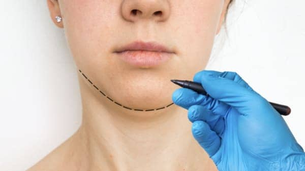 genioplastie paris mentoplastie avant apres chirurgie du menton paris docteur robert zerbib chirurgien esthetique paris 16 77