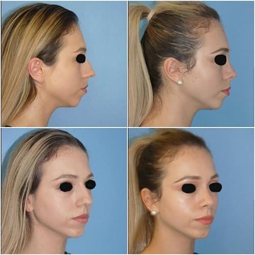 rhinoplastie avant apres rhinoplastie pointe du nez rhinoplastie apres 10 jours docteur robert zerbib chirurgien esthetique paris 16