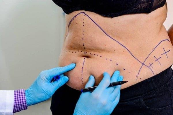 abdominoplastie avant apres abdominoplastie cicatrice abdominoplastie prise en charge docteur robert zerbib chirurgien paris 16