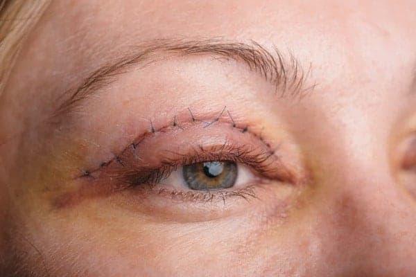 blepharoplastie cicatrice cicatrice blepharoplastie cicatrices apres blepharoplastie docteur robert zerbib chirurgien paris 16