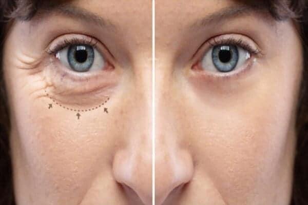 blepharoplastie tarif blepharoplastie remboursement blepharoplastie cicatrice docteur robert zerbib chirurgien paris 16