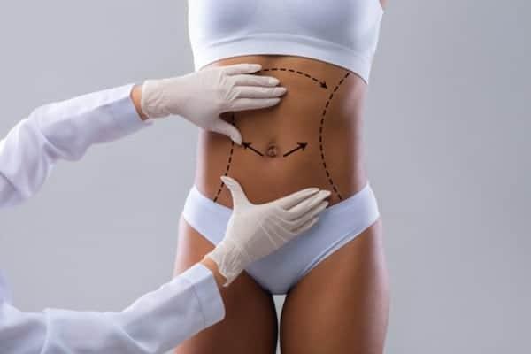 plastie abdominale plastie abdominale prix plastie abdominale avant apres docteur robert zerbib chirurgien paris 16