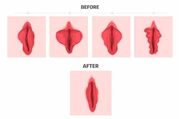 reduction levres genitales operation levres intimes operation des levres genitales prix docteur robert zerbib chirurgien paris 16